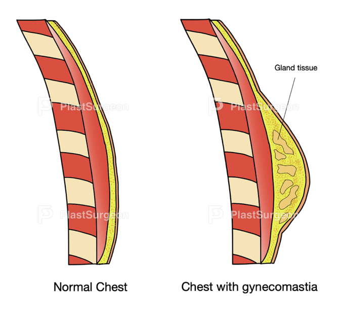This image has an empty alt attribute; its file name is Gynecomastia1.png