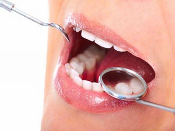 oral-checkup
