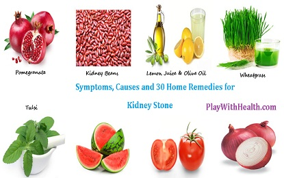Symptoms, Causes and 30 Home Remedies for Kidney Stone