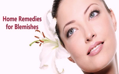 10 Natural and Effective Home Remedies for Blemishes Cure