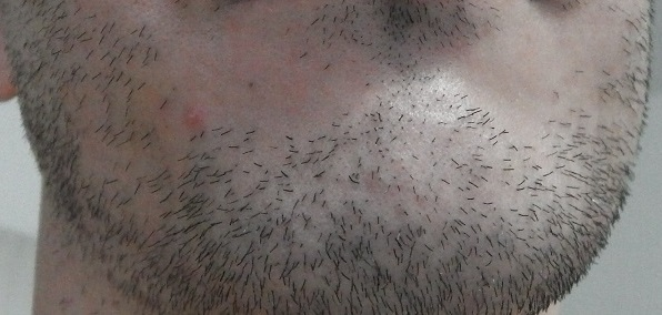 脱毛前のアゴ髭