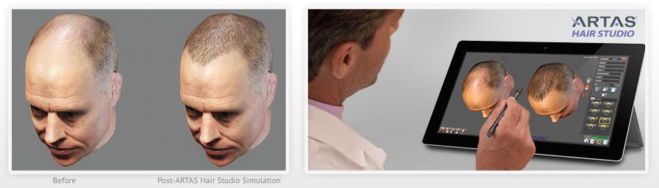 artas_hair_transplant_restoration_results
