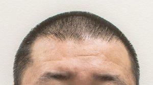 artas-hair-transplant-procedure-hair-1mm-shorter