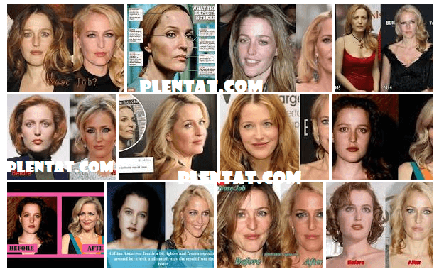 Gillian Anderson Plastic Surgery Before And After (1)
