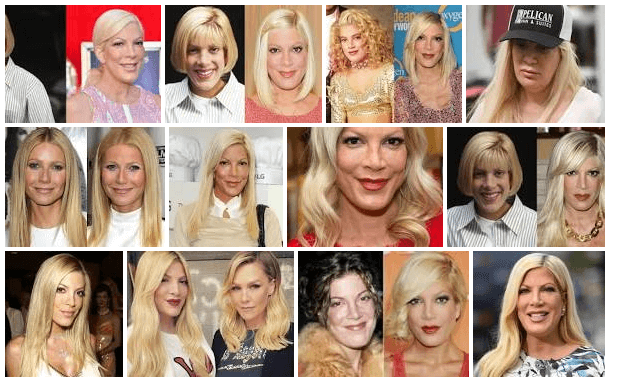 Tori Spelling Plastic Surgery Before And After (American Actress, Television personality)