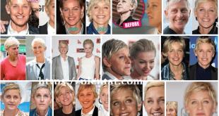 Ellen Degeneres Plastic Surgery Before And After