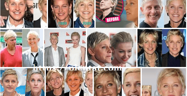 Ellen Degeneres Plastic Surgery Before And After