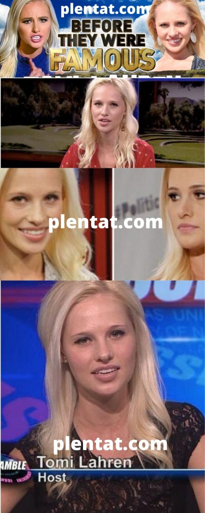 Tomi Lahren Before Plastic Surgery