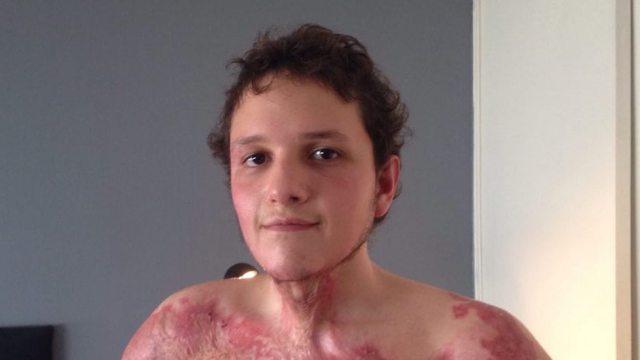 Michel, de 19 años, se electrocutó sin tocar un cable pelado de la CFE