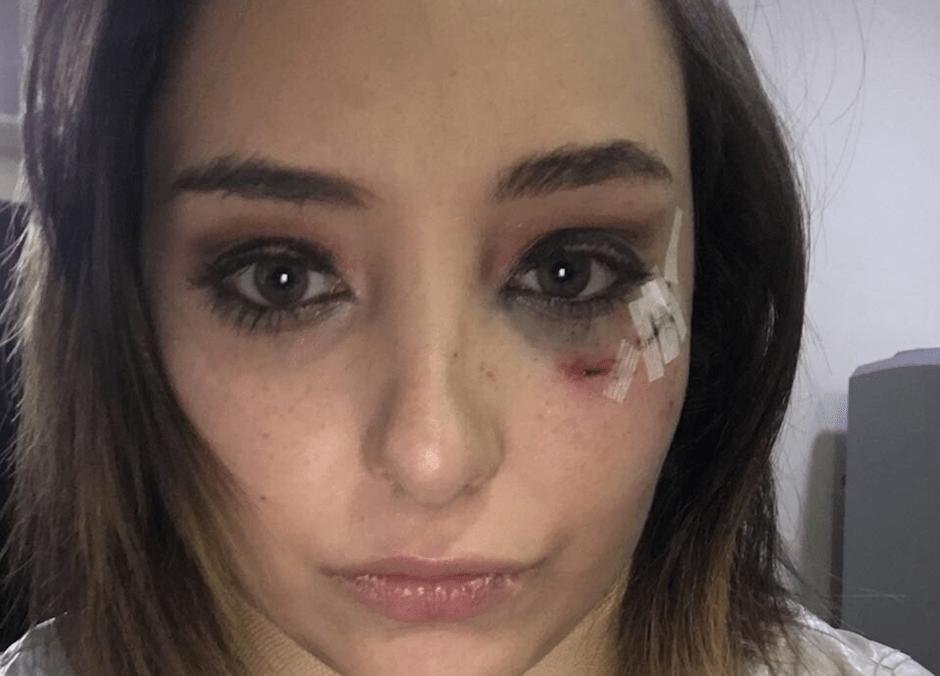 Agreden a actriz que confrontó a presunto violador durante evento del PVEM