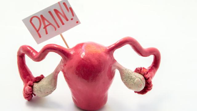 Endometrosis, Síntomas, Causas, México