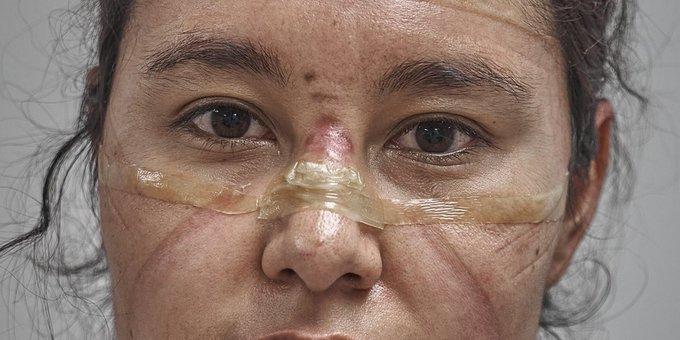 """""""Primer respondedor"""", fotografía de Iván Macías en el World Press Photo"""