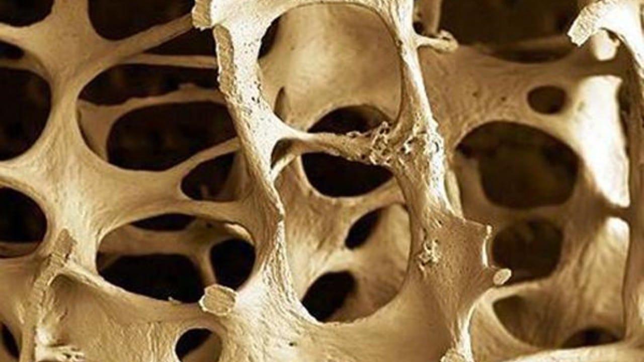 Parche osteoporis