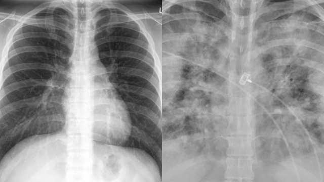 Así se ve los pulmones de alguien sin vacunar contra Covid-19