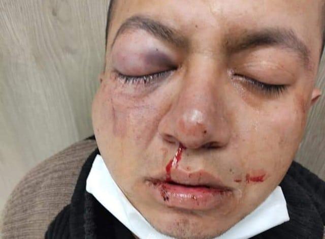 Motorepartidores de comida en Tláhuac vengan a amigo golpeado en taquería