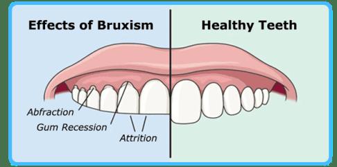 Dampak Kesehatan Mental Pada Kesehatan Gigi dan Mulut- Global Estetik Dental Care