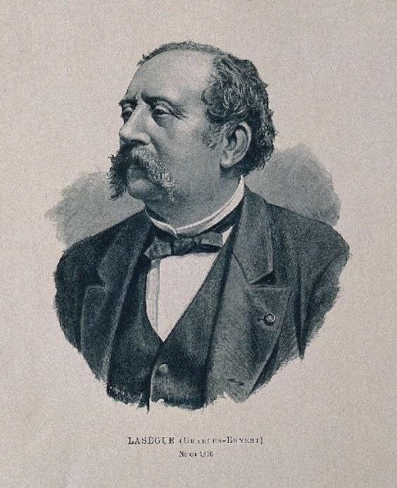 Ernest-Charles Lasegue