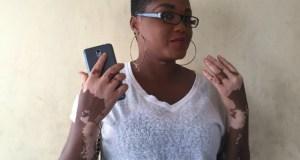 Kehinde Mosunmola Taiwo...the vitiligo lady...tells her story...