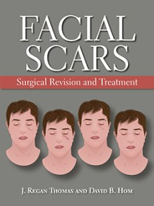 Facial Scars: Surgical Revision and Treatment cover image