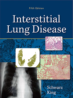 Interstitial Lung Disease cover image