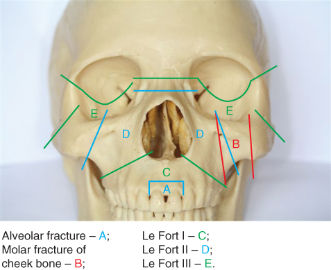 Illustration of Maxillary fractures.
