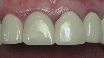 Photograph shows small portion of patient's upper jaw affected with gingiva, reddish portion above teeth, who was happy without knowing that teeth is unhealthy.