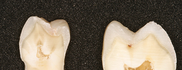 Photograph shows change of dentin, more complex substrate, when it gets closer to pulp and dentin is of 30 percent organic and 20 percent fluid.