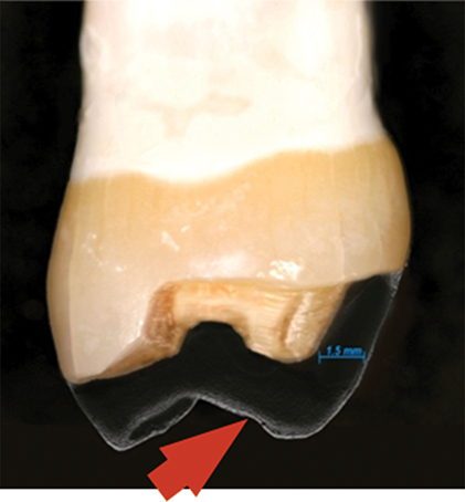Photograph shows enhanced effect of shear force through axial reduction which is at 1.5mm away from tooth.