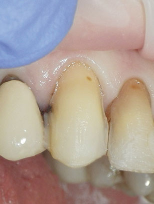 Photograph shows basic preparation and development of ideal outline preparation before caries removal and buildup.