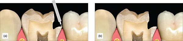 Photographs show completed preparation with some minor beveling, where material like amalgam needs strong packing to seal margins.