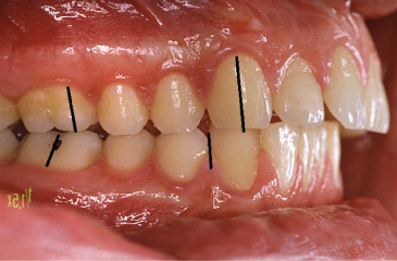 Photo showing Angle Class II malocclusion.