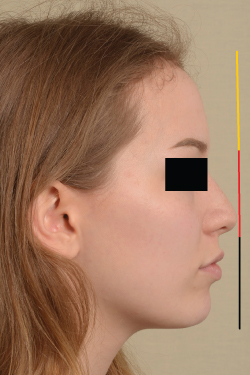 Photo of normal vertically proportioned face.