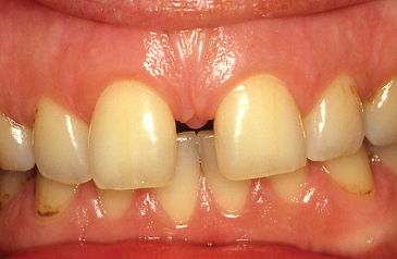 Photo showing Median diastema with a hypertrophic frenulum.