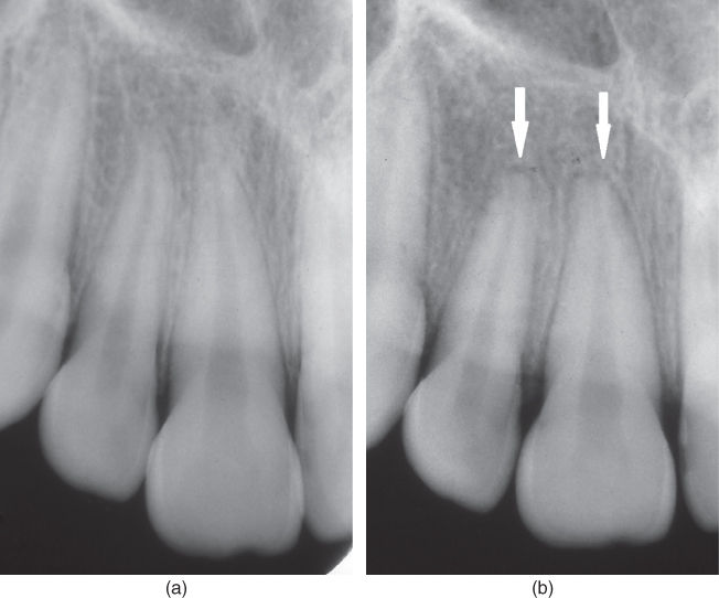 a) Radiograph showing maxillary right central and lateral incisor.; b) Radiograph showing apical root resorptions.