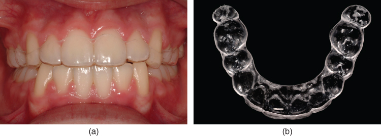 a) Photo of Essix retainer fitting mostly all teeth in the jaw.; b) Photo of occlusal view of the retainer.
