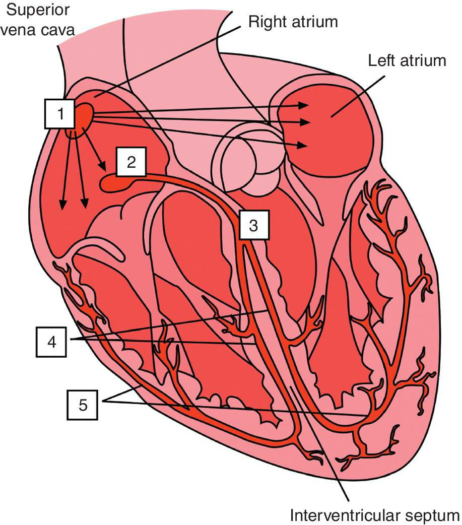 Drawing illustrating the conduction system of the heart: 1 – sinoatrial node, 2 – atrioventricular node, 3 – bundle of His, 4 – bundle branches, and 5 – Purkinje fibres.