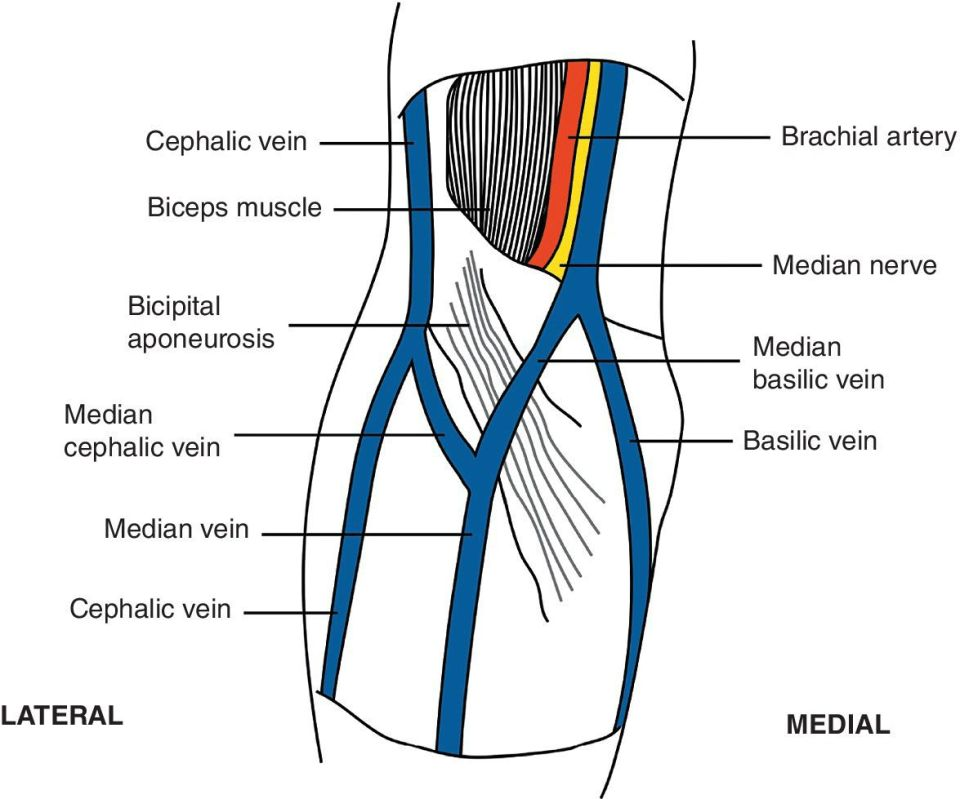 Anterior view of the arm with lines labeled cephalic vein, biceps muscle, bicipital aponeurosis, median cephalic vein, median vein, brachial artery, median nerve, median basilic vein, and basilic vein.