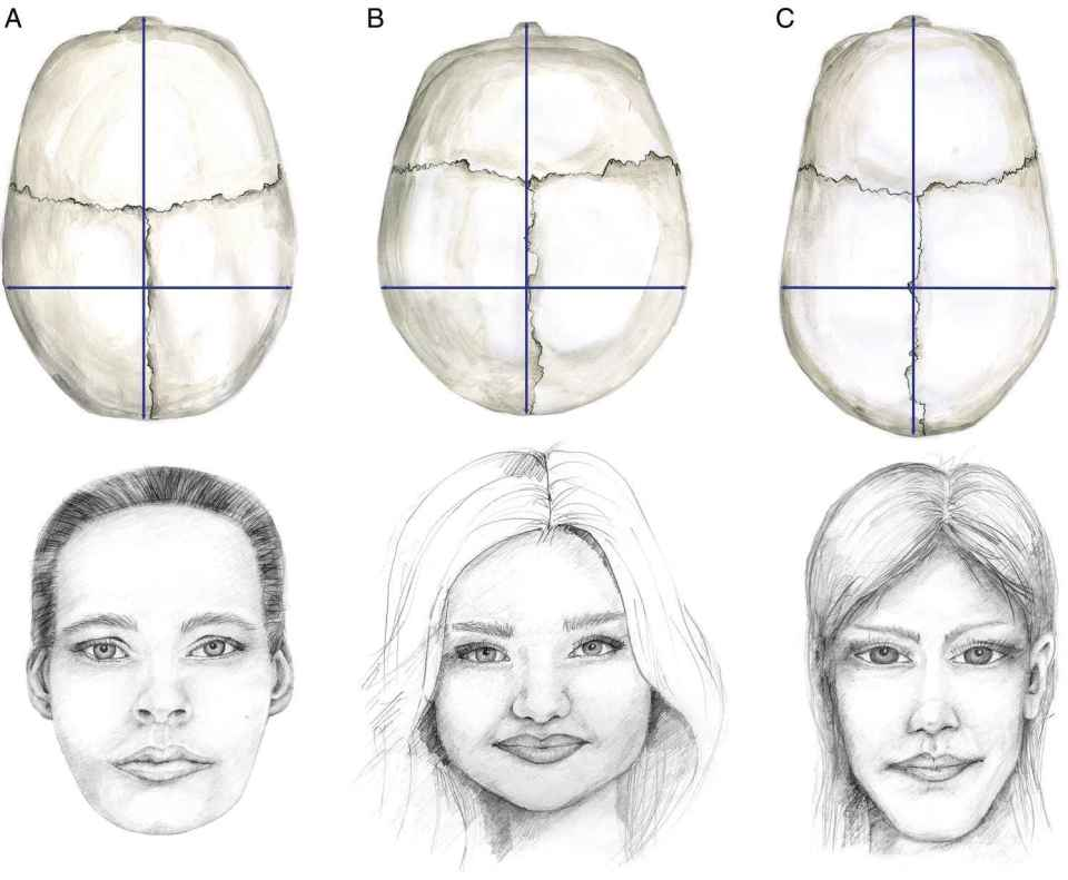 Illustration displaying the top view of the skulls (top) and sketches (bottom) of the facial types: mesofacial (left), brachyfacial (right), and dolichofacial (bottom).