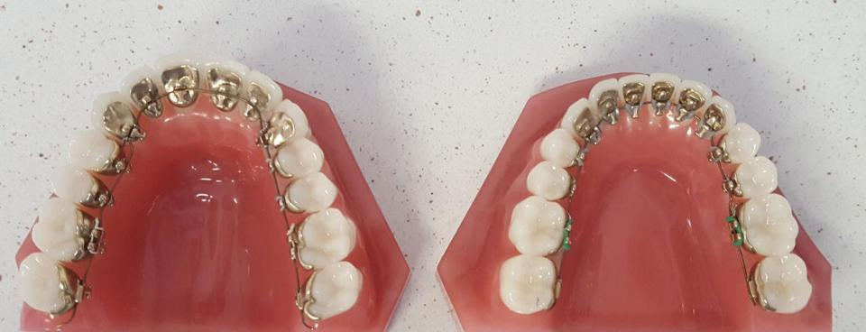 Occlusal view of an artificial maxillary (left) and mandibular (right) arches with attached lingual brackets.