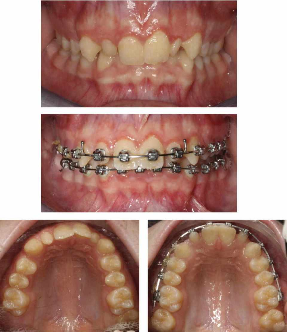 Anterior view of the dentition (top) and the dentition with braces (middle), and occlusal view of the maxillary arch (bottom left) and mandibular arch with dental braces (bottom right).