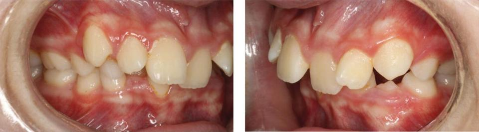 Right and left buccal views of the crowded dentition.