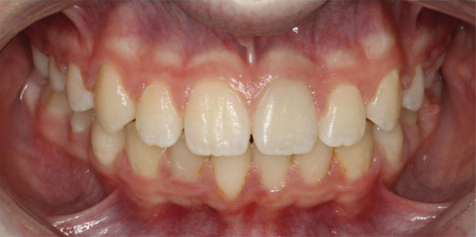Anterior view of the aligned and leveled dental arches.