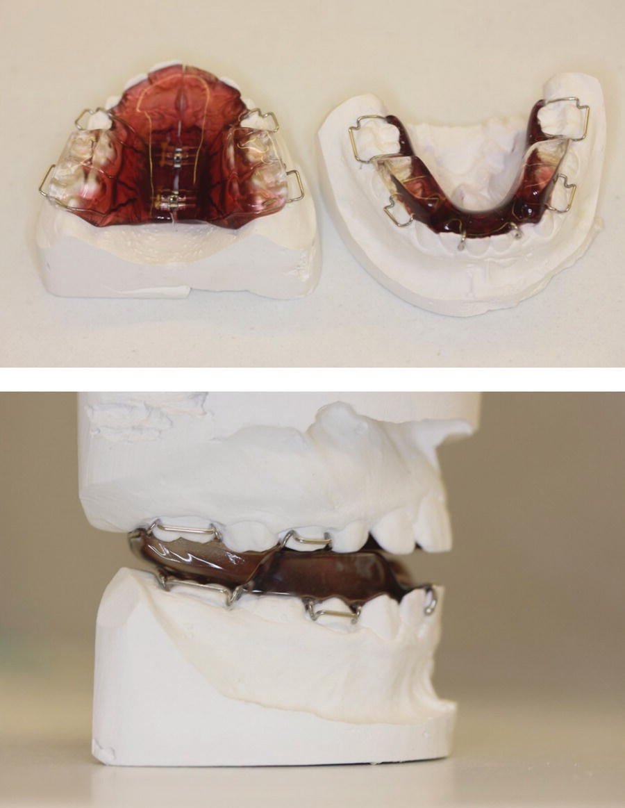 Top: Maxillary (left) and mandibular (right) occlusal views of dental cast with twin block. Bottom: Right buccal view of dental cast with twin block.
