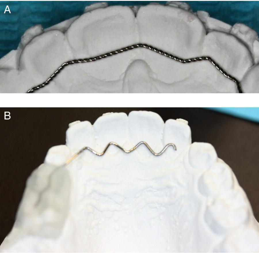 Top: A flexible multistranded wire on a mold. Bottom: Maxillary view occlusal view of a mold with a V-loop wire at the back of the frontal teeth.