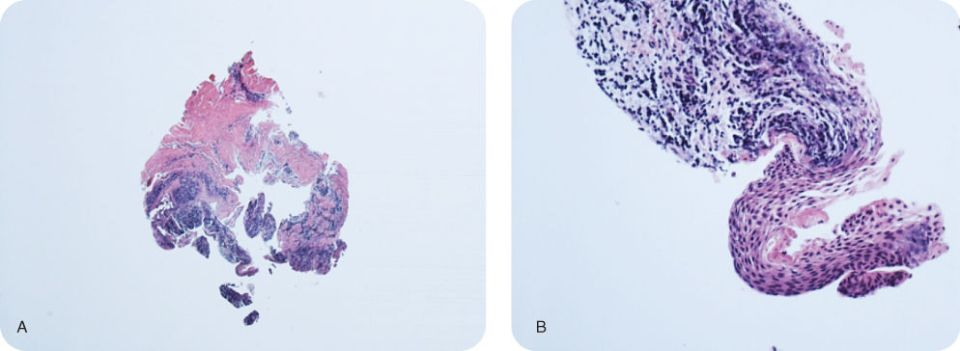 Illustration of Histologic slides of the biopsy tissue revealing a cyst lined by hyperplastic unkeratinized stratified squamous epithelium: Original magnification x4.; Illustration of Histologic slides of the biopsy tissue revealing a cyst lined by hyperplastic unkeratinized stratified squamous epithelium: Original magnification x40.