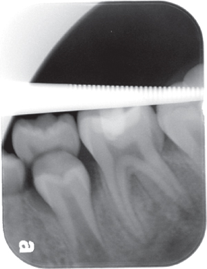 Illustration of Preoperative radiograph of a tooth.