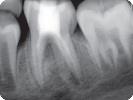 Preoperative radiograph of tooth.