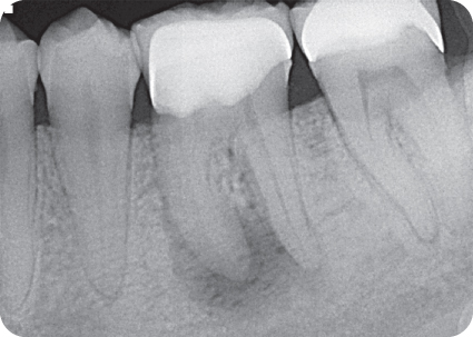 Illustration of Preoperative radiograph of tooth #19.