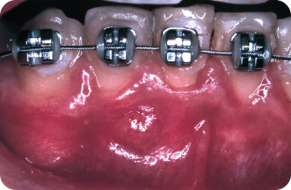 Photo showing Preoperative buccal swelling with sinus tract between teeth #25 and 26.