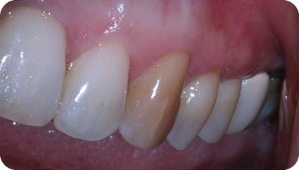 Photograph showing discoloration tooth #11 due to internal calcification.